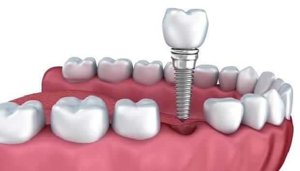 implant dis tedavi ucreti